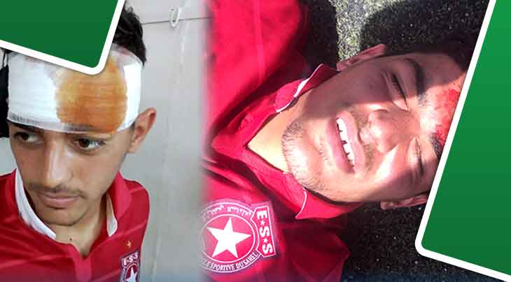 إصابة خطيرة لأحد لاعبي النجم الرياضي الساحلي